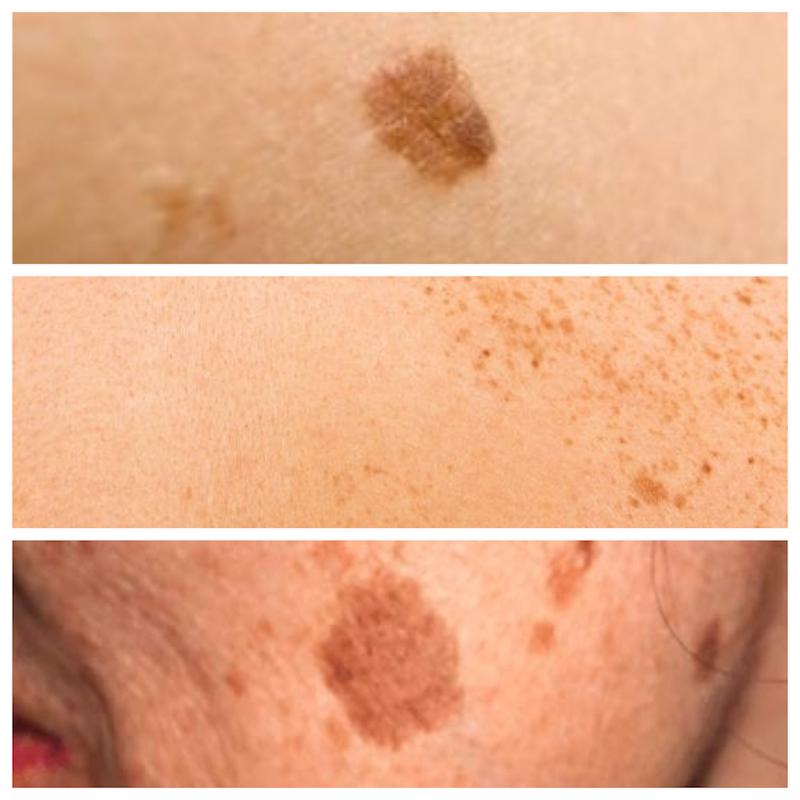 manchas marrones en la piel